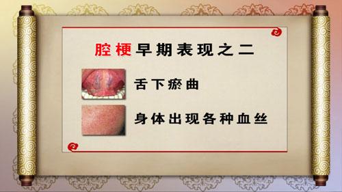 调肝理气畅血脉2,血瘀,李祥国,陈以言,养生堂2013年01月29视频