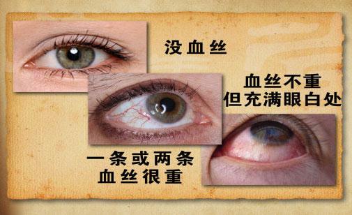 养生堂视频2013年02月18日,你的血管多少岁2,王宏宇,血管老化