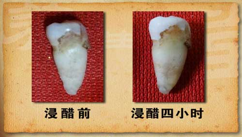 养生堂2013年11月23日视频,赵继志,把好健康第一关,龋齿,牙结石