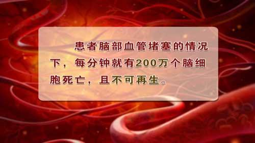 养生堂2013年12月29日视频,姜卫剑,脑卒中的蛛丝马迹