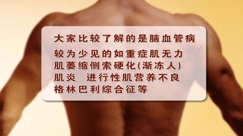 养生堂2014年1月28日视频,崔丽英,神经发出的求救信号3,脑梗