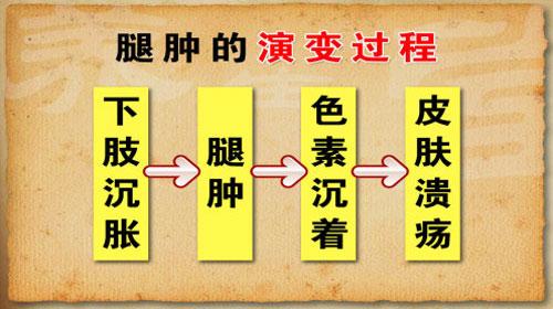 2014年8月6日养生堂_养生堂2014年5月28日视频,杨博华,养好双腿人不老3,腿