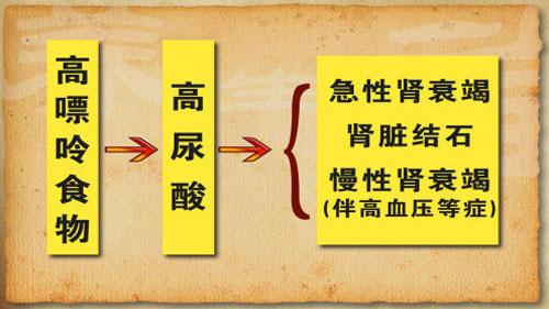 养生堂2014年9月9日视频,刘文虎,吃出来的肾之祸1,高尿酸图片