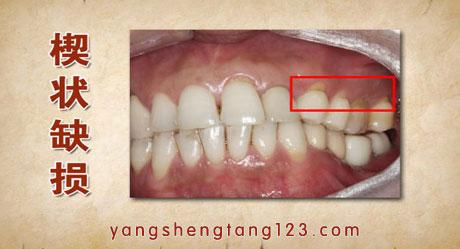 养生堂2015年7月28日视频,陈溯,用牙咬住的生命2,牙齿敏感