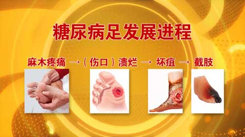 养生堂2016年7月26日视频,王江宁,护好糖足不截肢,糖尿病足