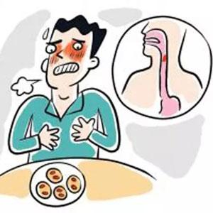 食管癌都有哪些征兆?食管癌的早期表现,怎样预防食管癌