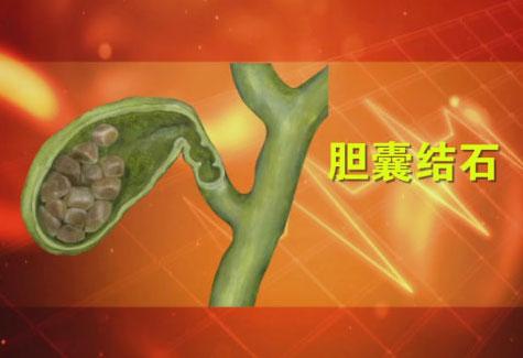 养生堂2017年6月26日视频,郭伟,听懂身体的求救信号1,腹痛