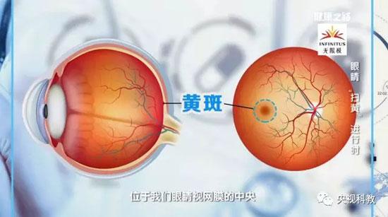 健康之路20180112视频,王康,治疗黄斑变性,眼睛扫黄进行时