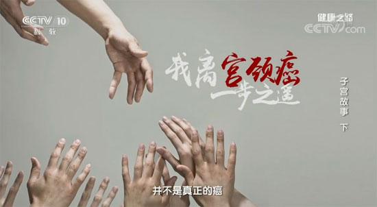 健康之路20180308视频,谭先杰,子宫故事(下)宫颈癌