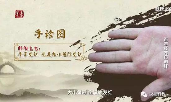 健康之路20180316视频,韩学杰,百年经方巧调肝,小柴胡汤