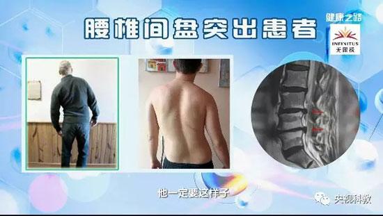 健康之路20180419视频,吴浩,看体态,识腰病,腰椎不好