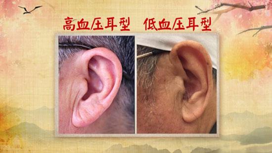 养生堂20180509,祝肇刚,知耳型辨健康,肾型耳,高血压耳型