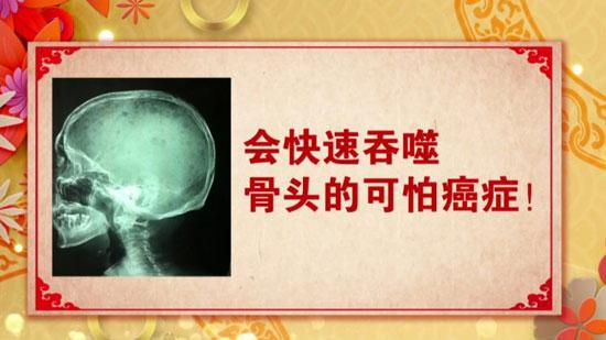 养生堂20180511,秦晓新,骨质疏松拖不得,骨髓瘤,溶骨因子