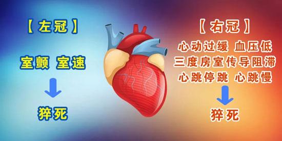 养生堂20180516,赵全明,心绞痛,给心痛分分类,冠状动脉痉挛