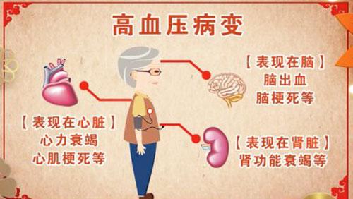 养生堂20180517,蒋立新,王伊龙,用对药物巧降压,高血压,降压药