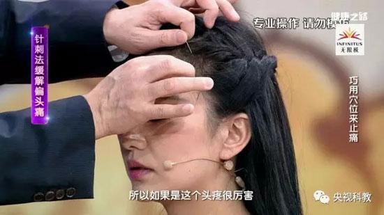 健康之路20180530,李志刚,巧用穴位来止痛,偏头痛,胃疼