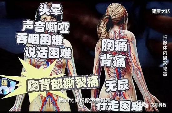 健康之路20180604,刘中民,主动脉瘤,扫除体内隐形地雷