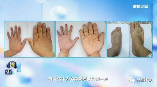 健康之路20180622,陈革,样貌改变之谜,巨人症,肢端肥大症
