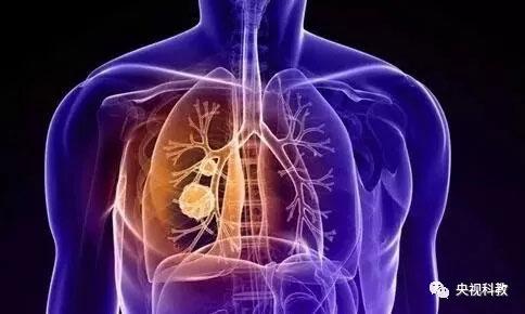 健康之路20180629视频,张树才,肺有结节莫恐慌,肺癌