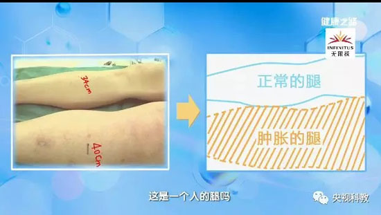 健康之路20180807,刘鹏,致命的腿肿,肺动脉栓塞
