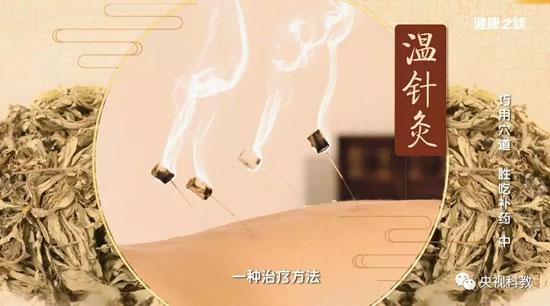 健康之路20180816,阮志忠,巧用穴道,胜吃补药(中)温针灸