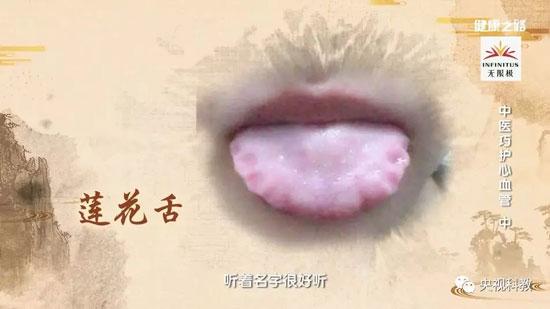 健康之路20180824,张敏州,中医巧护心血管(中)山楂降脂饮