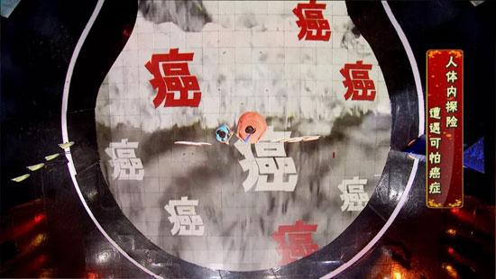 养生堂20180919,谭海东,揭秘小异物的癌变之路,胆囊癌