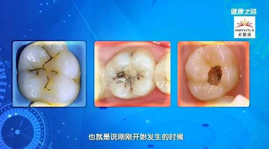 健康之路20180920,刘怡,人老也能不掉牙,导致掉牙的两个原因