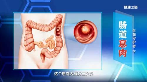 健康之路20190101,傅传刚,生命守护者(下)息肉病的临床症状