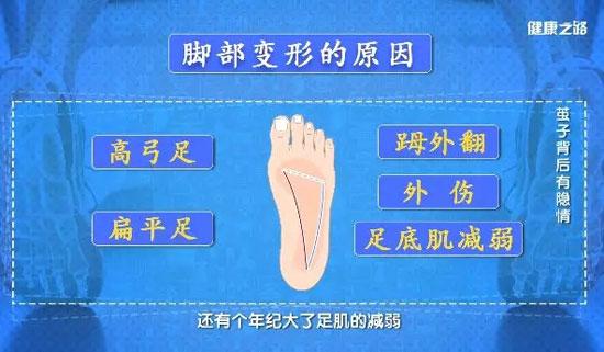 健康之路20190422,温建民,茧子背后有隐情,足部长茧子的原因