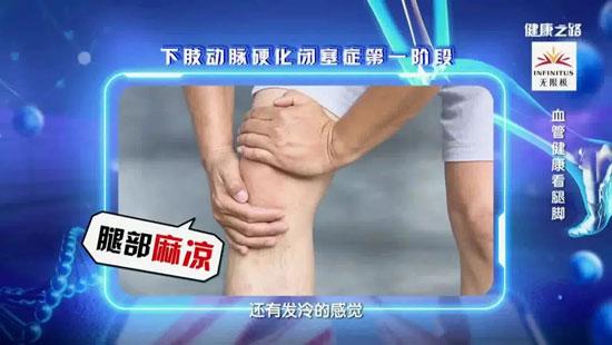 健康之路20190911,张鸿坤,血管健康看腿脚,下肢动脉硬化闭塞症形成原因