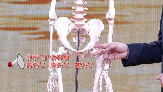 养生堂20191211,乔林,拔除骨中钉和肉中刺,吃掉骨头,关节损害