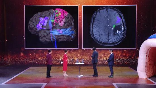 养生堂20200102,王硕,高科技巧擒盗血贼,脑血管畸形,脑出血