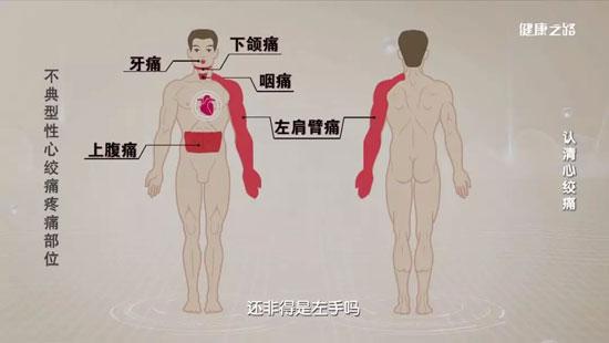 健康之路20200111,曾玉杰,认清心绞痛,不典型性心绞痛的疼痛部位