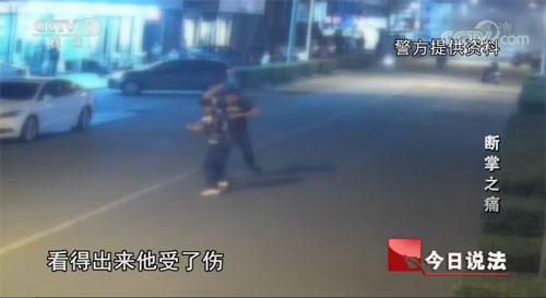今日说法20200116,断掌之痛,打架斗殴,江苏张家港市锦丰镇