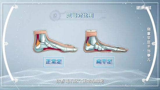 健康之路20200303,陈兆军,别拿扁平足不当事儿,治疗方法