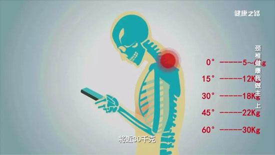 健康之路20200313,孙宇庆,颈椎健康我做主(上)神经根型颈椎病
