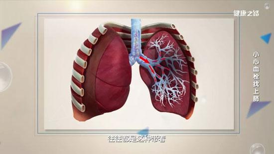 健康之路20200421,甄雅南,小心血栓找上肺,肺动脉血栓治疗方法
