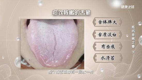 健康之路20200423,春季痰饮型咳嗽,甘草干姜汤,小青龙汤