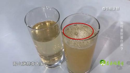名医话养生20200513,龚学忠,喝水不当竟然会引发严重肾病