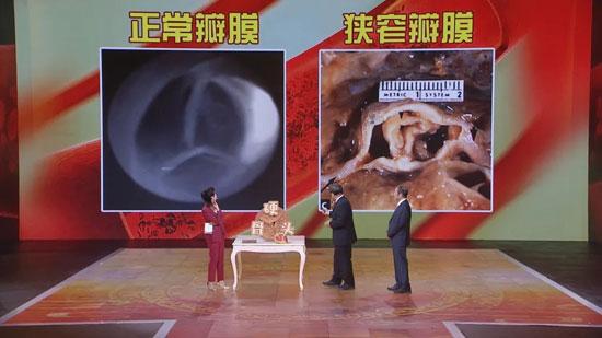 养生堂20200521,王伟民,警惕心脏中要命的硬骨头,主动脉瓣狭窄