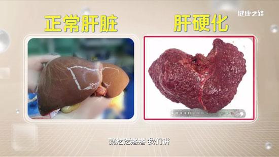 健康之路20200604,栗光明,换肝这些年,肝移植,伤害肝脏的危险因素