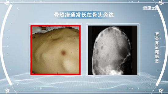 健康之路20200908,路瑾,疲劳背后藏隐患,骨髓瘤早期信号症状